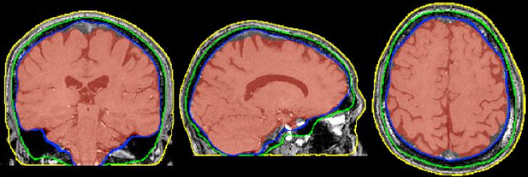 Biomedical imaging doctoral researcher, Hanna Nowicka —WOAE091